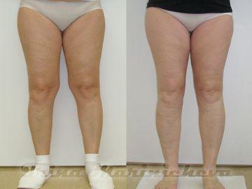 липосакция коленей фото до и после