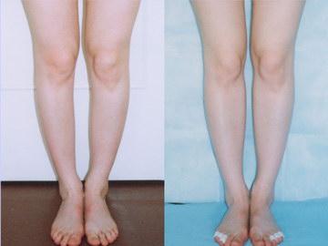 Круропластика фото до и после: Наибольший опыт в России ...: http://beautylegs.ru/foto.html