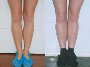 липосакция голени фото до и после