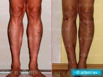 исправление кривых ног: